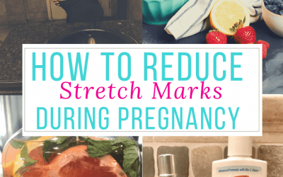 8 Easy Ways To Prevent Stretch Marks During Pregnancy